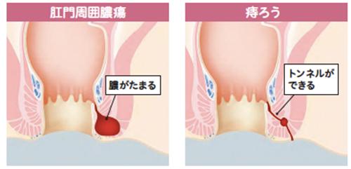 こう門 突発 痛 性 [医師監修・作成]肋間神経痛の症状:痛み方や場所(胸・背中・脇腹・脇の下など)